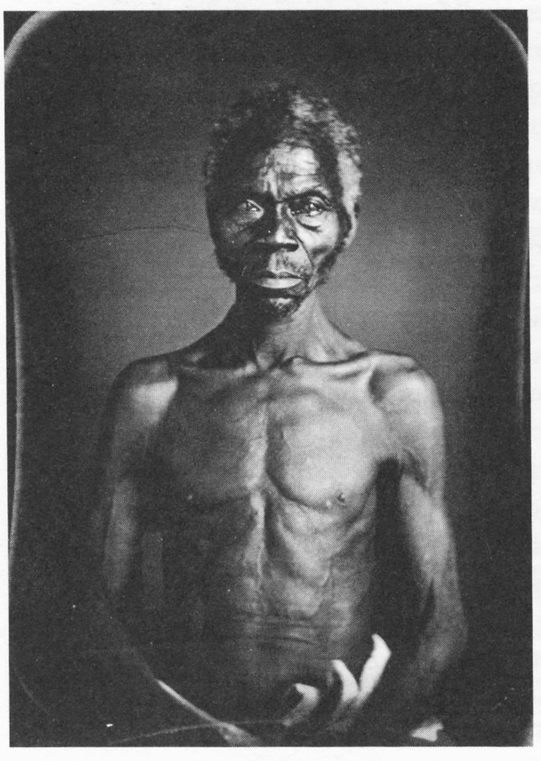 JT-Zealy-Louis-Agassiz-Renty-Congo-Plantation-of-B.F.-Taylor-Esq-1850
